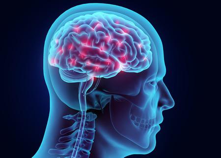 korsakov-hersenen
