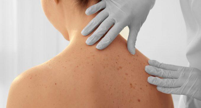 Meest voorkomende huidproblemen